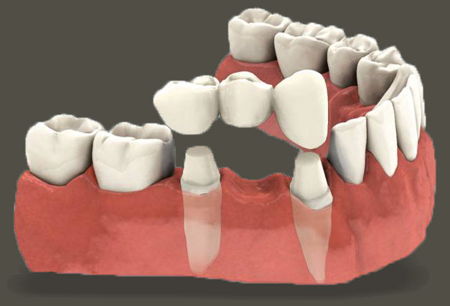 Dental Implants Better than Bridges & Dentures | Central Perio Canberra