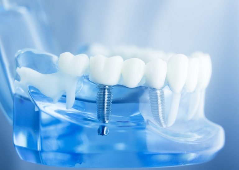 Getting Dental Implants in Canberra | Central Periodontics