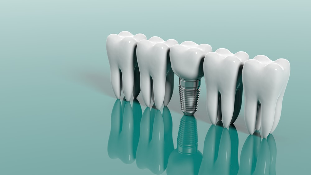 Are Dental Implants Covered By Medical Insurance? - Central Peirondotics Canberra