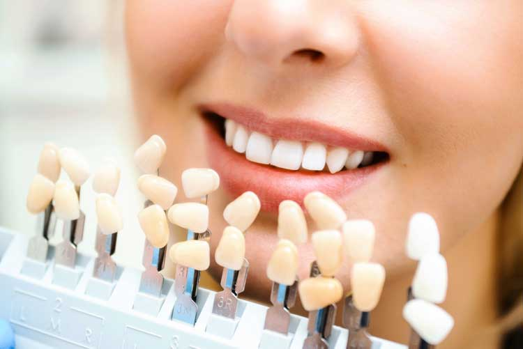 Will My Dental Implants Look Natural? | Central Perio Canberra