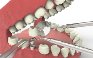 What Is A Periodontist?   Central Periodontics Canberra