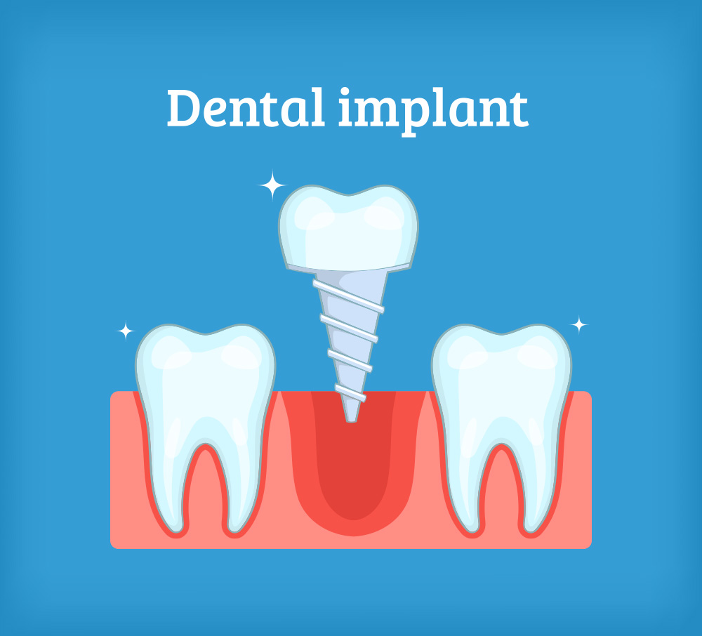 Can Dental Implants Come Loose? | Central Periodontics Canberra