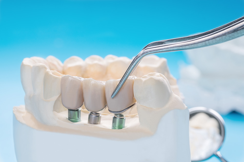What Are All On Four Implants? | Central Periodontics Canberra